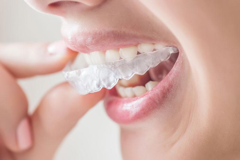 esempio di ortodonzia invisibile
