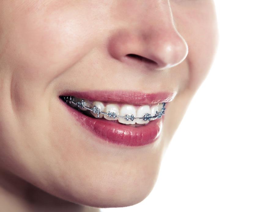 cob-specialisti-in-implantologia-ortodonzia-mobile-e-fissa