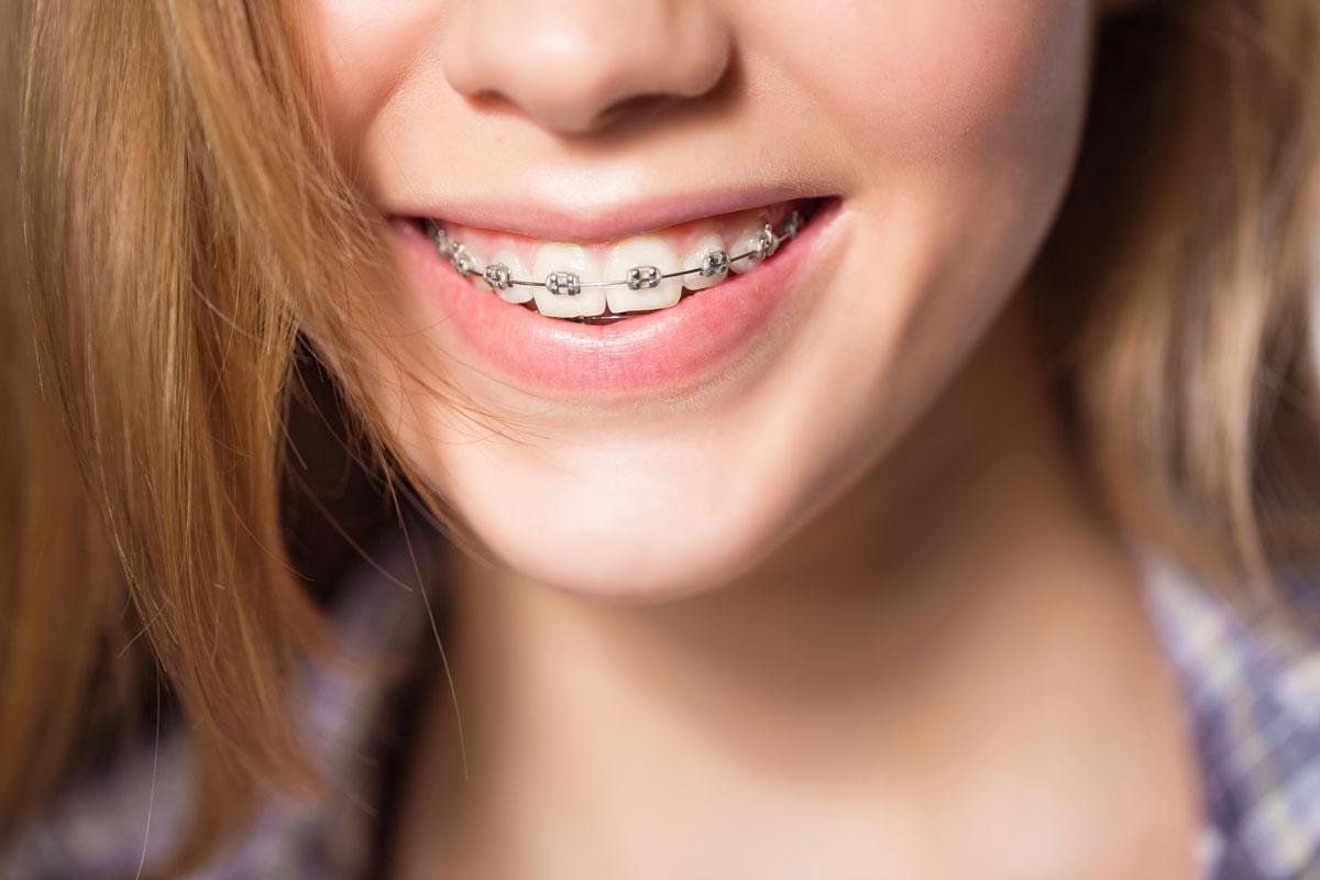 esempio di ortodonzia pre chirurgica